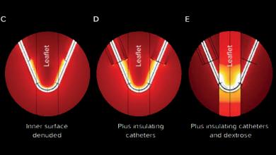 Advances in Transcatheter Electrosurgery for Treating Valvular Heart Disease