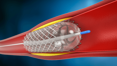 Drug-coated Balloon-only Angioplasty