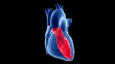 Idiopathic Left Ventricular Tachycardia