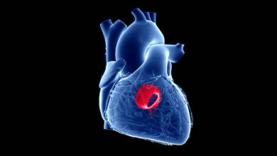 Transcatheter Mitral Valve Replacement: Current Evidence and Concepts
