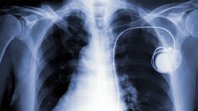 Remote Management of Pacemakers and Implantable Defibrillators - Role and Long-term Viability