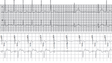 Troubleshooting Programming of Conduction System Pacing