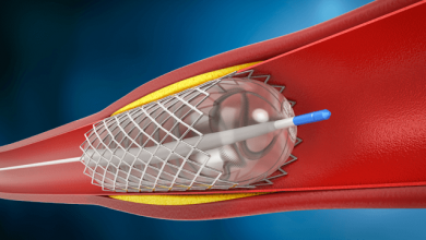 Dual Antiplatelet Therapy After Drug-eluting Stent Implantation