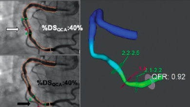 Functionally Complete Coronary Revascularisation in Patients Presenting with ST-elevation MI and Multivessel Coronary Artery Disease