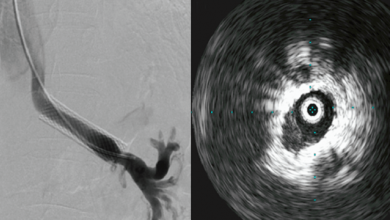 Left Renal Vein Stenting in Nutcracker Syndrome: Outcomes and Implications