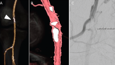 Use of the Orbital Atherectomy System in Isolated, Chronic Atherosclerotic Lesions of the Popliteal Artery