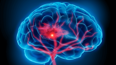 The Potential Role of Edoxaban in Stroke Prevention Guidelines
