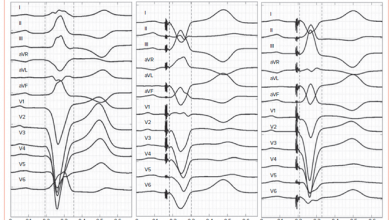 Fusion Pacing with Biventricular, Left Ventricular-only and Multipoint Pacing in Cardiac Resynchronisation Therapy: Latest Evidence and Strategies for Use