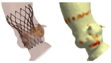 Patient-specific Computer Simulation of Bicuspid Aortic Valve