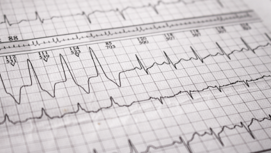 Reentrant Arrhythmias of the His-Purkinje System