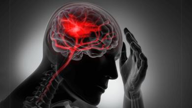 Residual Stroke Risk in Atrial Fibrillation