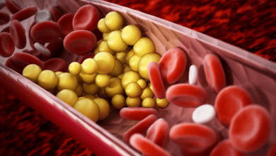 Dyslipidemia: Current Therapies and Guidelines for Treatment