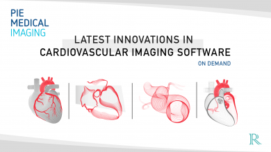 Latest Innovations in Cardiovascular Imaging Software