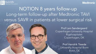 NOTION 8 Years Follow-Up – Long-Term Follow-Up After Medtronic TAVI Versus SAVR In Patients At Lower Surgical Risk