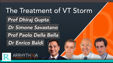 The Treatment of VT Storm