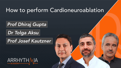 How to Perform Cardioneuroablation