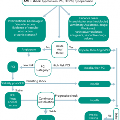 Proposed Algorithm for the Treatment of Acute Myocardial Infarction and Cardiogenic Shock