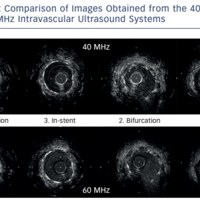 Comparison of Images Obtained from the 40 MHz and 60 MHz Intravascular Ultrasound Systems