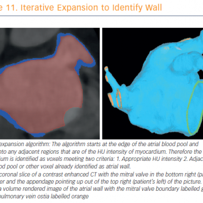 Iterative Expansion to Identify Wall
