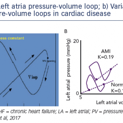 a) Left atria pressure-volume loop; b) Variation in left atrial pressure-volume loops in cardiac disease
