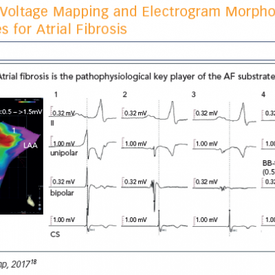 Voltage Mapping and Electrogram Morphology as Surrogates for Atrial Fibrosis