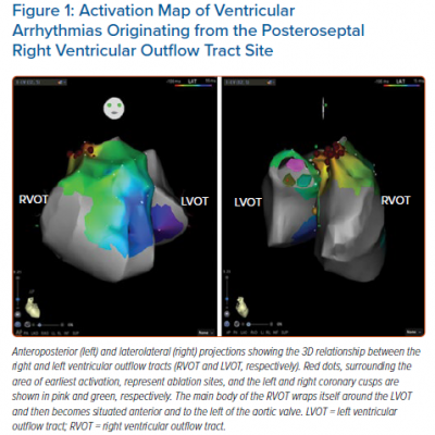 Activation Map of Ventricular Arrhythmias Originating from the Posteroseptal Right Ventricular Outflow Tract Site