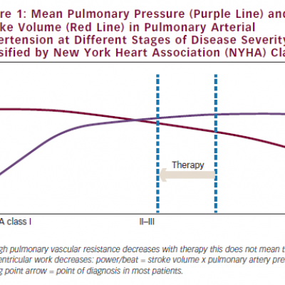 Mean Pulmonary Pressure (Purple Line) and Stroke Volume (Red Line) in Pulmonary Arterial Hypertension at Different Stages of Disease Severity, classified by New York Heart Association (NYHA) Class