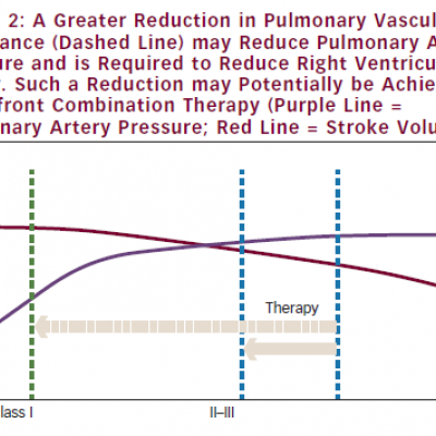 A Greater Reduction in Pulmonary Vascular Resistance (Dashed Line) may Reduce Pulmonary Artery Pressure and is Required to Reduce Right Ventricular Power. Such a Reduction may Potentially be Achievable by Upfront Combination Therapy (Purple Line = Pulmonary Artery Pressure; Red Line = Stroke Volume)