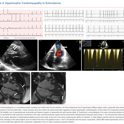 Hypertrophic Cardiomyopathy in Scleroderma