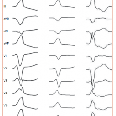 12-lead ECG of Ventricular Arrhythmias Arising from Right Ventricular Outflow Tract Anterior, Middle and Posterior Sites