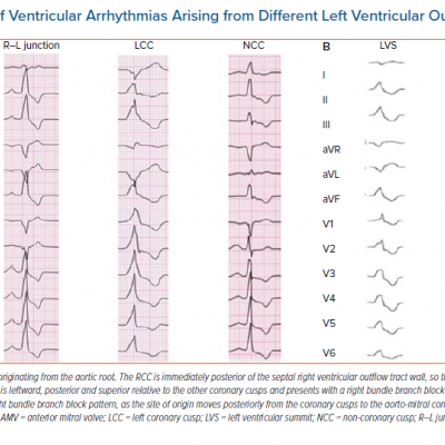 12-lead ECG of Ventricular Arrhythmias Arising from Different Left Ventricular Outflow Tract Sites