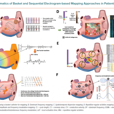 Schematics of Basket and Sequential Electrogram-based Mapping Approaches in Patients With AF
