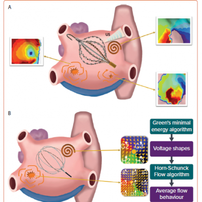 Other Basket Electrogram-based Mapping Systems in Patients With AF