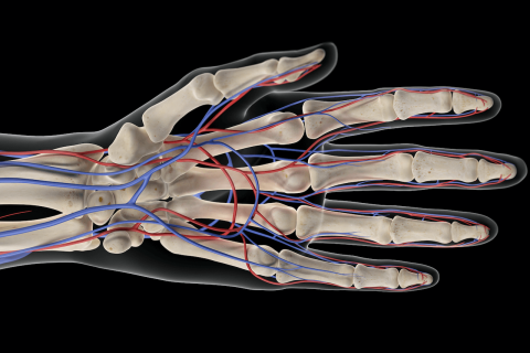 Radial artery occlusion in a patient with lupus, antiphospholipid syndrome, and Raynaud phenomenon: a multimodal approach