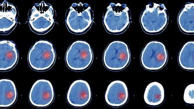 Cerebral Embolic Protection in TAVI
