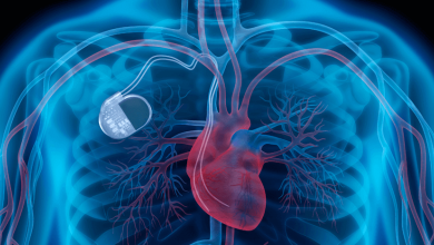 Preventive Ventricular Tachycardia Ablation in Patients