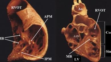 Anatomical Consideration in Idiopathic Ventricular Arrhythmia Ablation