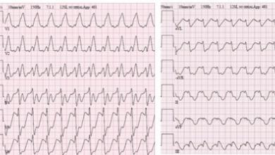 Supraventricular Arrhythmias in Adult Congenital Heart Disease