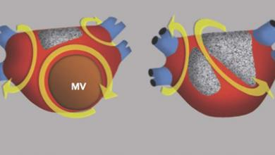 Atrial Flutter, Typical and Atypical: A Review
