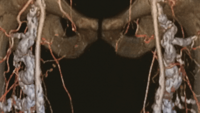 Mönckeberg's Arteriosclerosis