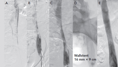 Catheter Interventions for Acute Deep Venous Thrombosis
