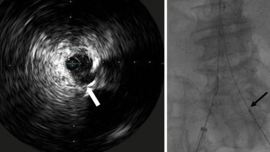 Endovascular Aneurysm Repair Using Anaconda Repositionable
