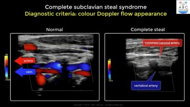 Complete Subclavian Artery Steal Syndrome: ultrasound criteria