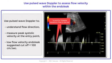 High jet velocities type II endoleak post endovascular abdominal aortic aneurysm repair (EVAR)