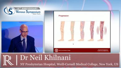VS 2019 - Chronic Vein Disease Progression - Dr Neil Khilnani