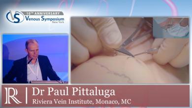 VS 2019 - Mini-Phlebectomy - Dr Paul Pittaluga