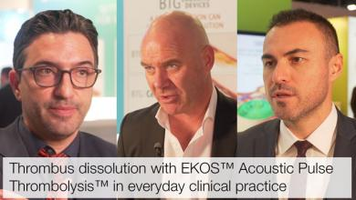 Thrombus Dissolution with EKOS™ Acoustic Pulse Thrombolysis™ in Everyday Clinical Practice