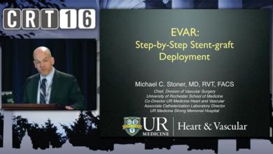 EVAR - Step-by-step Stent Graft Deployment