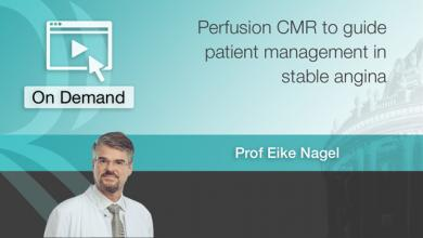 Perfusion CMR to guide patient management in stable angina