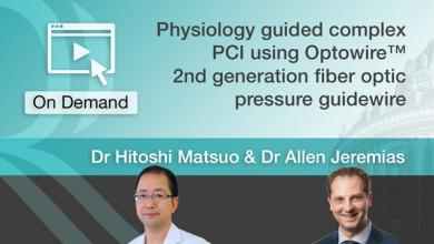 Physiology guided complex PCI using Optowire